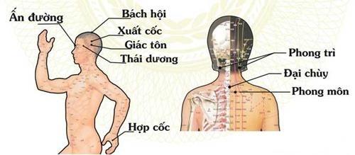 Điều trị bệnh đau đầu dứt điểm với máy cứu ngải Khánh Thiện
